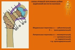 Схема уровней переломов шейки бедра