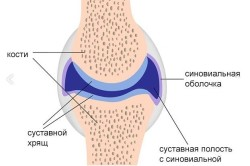 Синовит голеностопного сустава