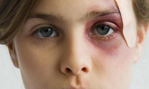 Проблема ушиба глаза