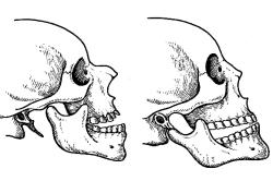 Схема перелома челюсти
