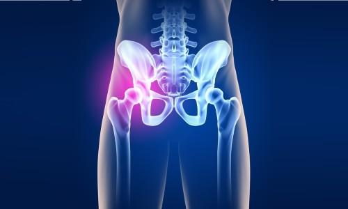 Проблема вывиха тазобедренного сустава