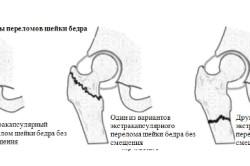 Типы переломов бедра
