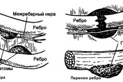 Схемы ушиба и перелома ребер