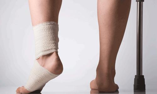 Проблема ушиба ноги