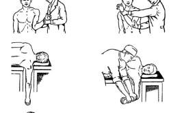 Варианты вправления вывиха плеча