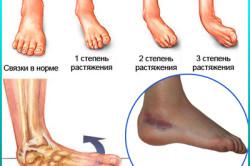 Схема растяжения ноги