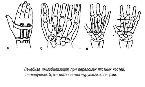 Иммобилизация при переломах костных костей