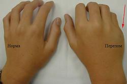Вид здоровой руки и перелома