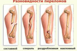 Виды переломов руки