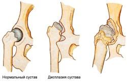 Нормальный сустав и дисплазия суставов