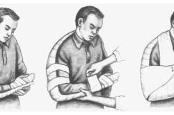 Иммобилизация руки при переломе