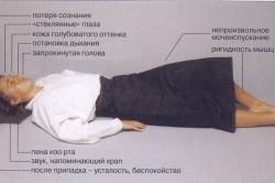 Эпилептические припадки при эпидуральной гематоме