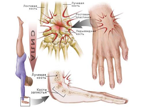 заболевание суставов запястья