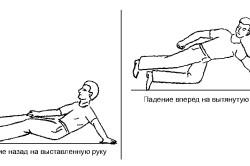 Механизм вывихов локтевого сустава