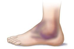 Синяк на ноге при разрыве связок