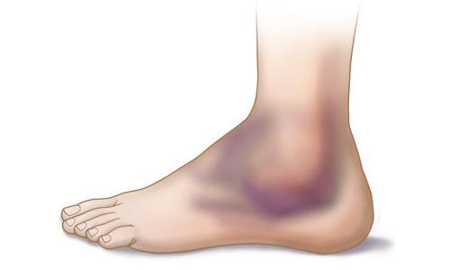 Проблема опухоли на ноге после ушиба