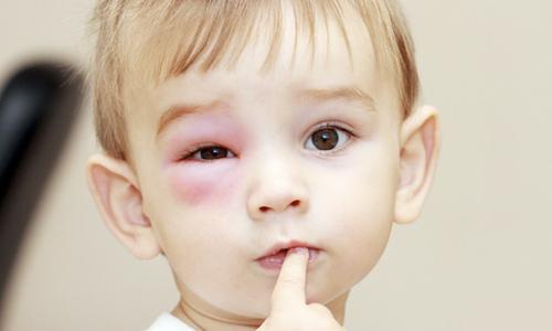 Проблема синяков у детей
