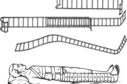 Шина Дитерихса при переломе бедра