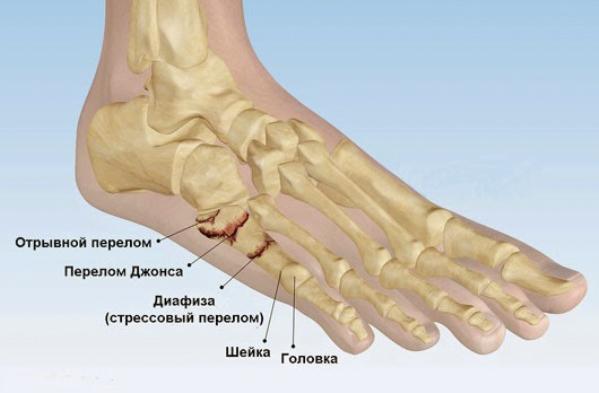 симптомы при трещине стопы Хорес Коротки
