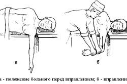 Вправление плеча по методу Джанелидзе