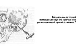 Вправление скуловой дуги
