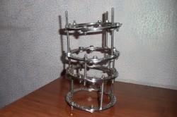 Аппарат Илизарова для лечения патологического перелома