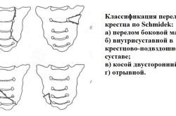 Классификация переломов крестца по Schmidek