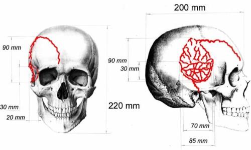 Травма перелом основания черепа