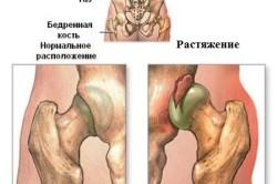 Схема растяжения связок тазобедренного сустава