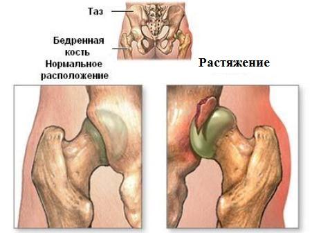 Растяжение связок тазобедренного сустава: симптомы и лечение