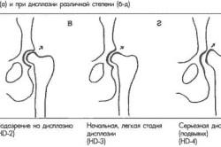 Степени дисплазии тазобедренного сочленения
