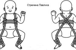 Стремена Павлика для лечения дисплазии тазобедренных суставов