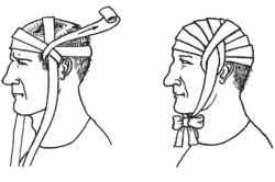 Наложение повязки на травмированную голову