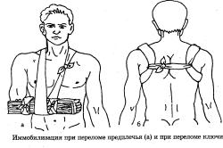Иммобилизация при переломе предплечья и ключицы