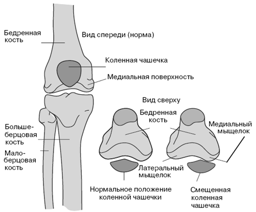 Причины возникновения травм