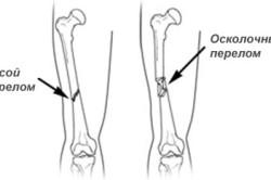 Косой и осколочный перелом