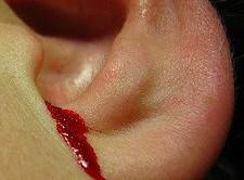 Ушное кровотечение после получения травмы