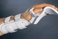 Фиксация кисти при переломе ладьевидной кости кисти