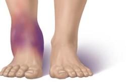 Сильный отек при переломе ноги