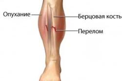 Схема перелома костей голени