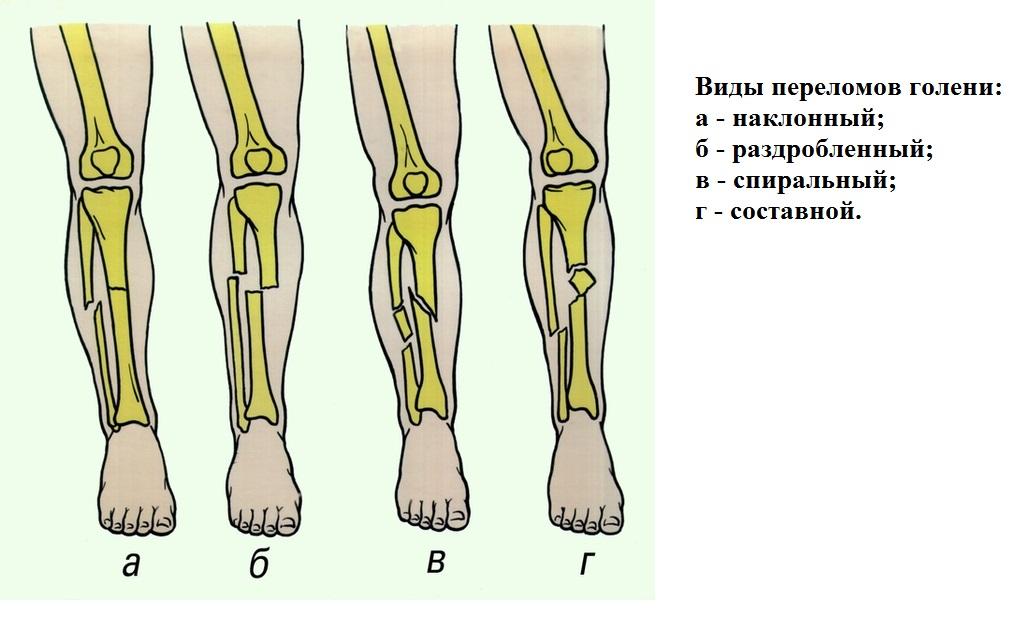 лечение ложного сустава голени