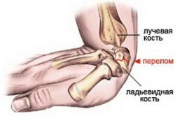 Изолированные переломы лучевой или локтевой кости