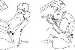 Механизм перелома основания черепа при ДТП