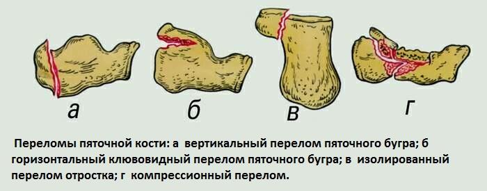 гельминты в организме человека фото с описанием