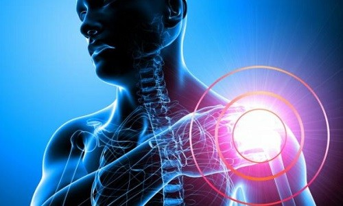 Проблема перелома хирургической шейки плеча