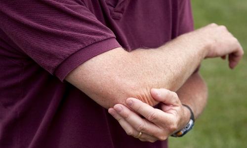 Необходимость разработки локтевого сустава после перелома