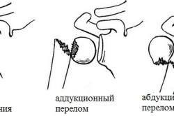 Виды переломов хирургической шейки плечевой кости
