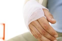 Наложение гипса для лечения перелома