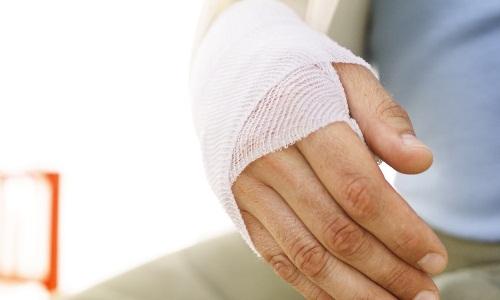 Проблема перелома кисти руки
