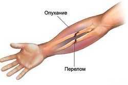 Перелом кости руки